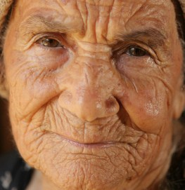 what-causes-wrinkles-1